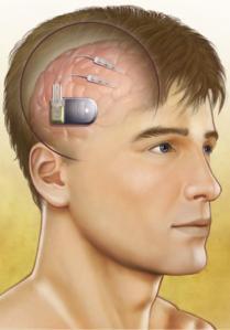 neuropace